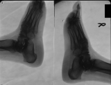 collapse of longitudinal arch and loss of some phalanges