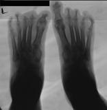 concentric diaphyseal remodelling/destruction of all phalanges: diffuse atrophy of distal ends of metatarsals