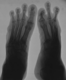 loss of ray 5 on both feet: concentric diaphyseal remodelling of phalanges on right foot: erosion of distal end of right metatarsal 4