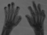 claw hands: absorbtion of intermediate and distal phalanges