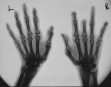 right hand - loss of intermediate and distal phalanges of Ray 3, loss of distal phalanges Rays 2,5