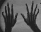 early claw hands: subluxation of joints of phalanges of ray 5 on both hands
