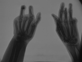 loss of fingers from both hands: concentric diaphyseal remodelling of phalanges