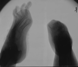 right foot - reduced to stump of fused tarsals: left foot - loss of Hallux, contraction deformation of phalanges