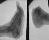 right foot - reduced to stump of fused tarsals: left foot - collapse of longitudinal arch, contraction deformation of phalanges