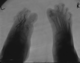 left foot - absorbtion of all metatarsals and phalanges: right foot - concentric diaphyseal remodelling of metatarsals and phalanges, less advanced than left foot