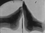 left foot - destruction of anterior third of foot: right foot - collapse of longitudinal arch