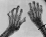 claw hands, left shows joint subluxation: right shows destruction of many phalanges