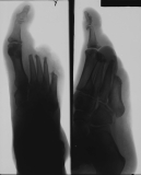 destruction of antero-lateral aspect of foot including phalanges and distal ends of metatarsals of rays 2-5