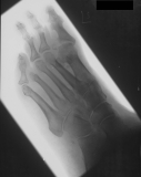 loss of tarsals of ray 4: diffuse atrophy of remaining phalanges with ankylosis of joint of hallux