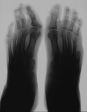 right foot - loss of distal half of fifth metatarsal and its phalanges: left foot - atrophy and collapse of phalanges of rays 2-5