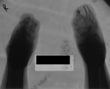both feet reduced to stumps, remnants show concentric diaphyseal remodelling of 3 left metatarsals