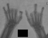 clawed hands: loss of two fingers from each hand: