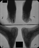 feet reduced to stumps: advanced concentric diaphyseal remodelling of all metatarsals