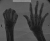 right hand - loss of all fingers
