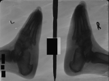 loss of all phalanges: collapse of longitudinal arch