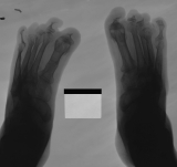 concentric diaphyseal remodelling of all phalanges
