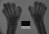 loss of intermediate and distal phalanges: flexion contracture