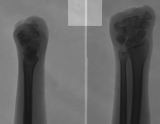 loss of ALL metatarsals and phalanges: fusion of carpals