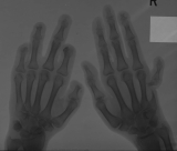 absortion of distal phalanges: destruction and concentric diaphyseal remodelling of right metacarpal 5 with distraction and reduction of digit 5