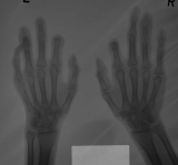 destruction of intermediate and distal phalanges of ray 2 of both hands: erosion of most distal phalanges