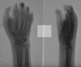 concentric diaphyseal remodelling of all proximal phalanges: destruction of all intermediate and distal phalanges
