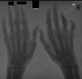 right hand shows destruction and fusion of inter-phalangeal joints