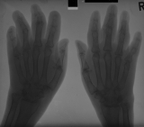 early claw hand deformity: diffuse atrophy and fusion of carpals
