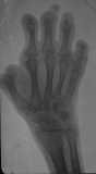 absorbtion and loss of all intermediate and distal phalanges