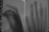 claw hand with subluxation and damage to phalangeal joints
