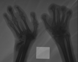 left hand - destruction of all carpals: displaced fracture of distal ulna: destruction of distal of metacarpal 3 (cf radiograph 633): right hand - loss of all phalanges
