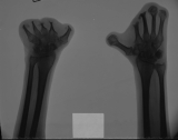 Hands reduced to stumps: loss of all phalanges: severe concentric diaphyseal remodelling of metacarpals: fusion of carpals