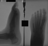 lost most of 4th digit: contraction deformation and elevation of toes: collapsed arch: dorsal tarsal bars