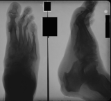 Ulcer below heel: new bone on calcaneus: concentric diaphyseal remodelling metatarsals: loss of phalanges: disruption of many joints