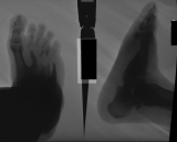 collapsed arch: dorsal tarsal bars: destruction of metatarsals 2-5: loss of proximal ends of proximal phalanges