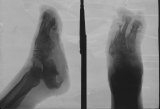 loss of phalanges: concentric diaphyseal remodelling metatarsals: deep ulcer of heel, bony crater in calcaneus