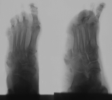 destruction of metatarsal 5 concentric diaphyseal remodelling of remaining phalanges: