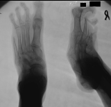 destruction of phalanges of metatarsal 5: concentric diaphyseal remodelling of metatarsal 5: contraction deformation of toes